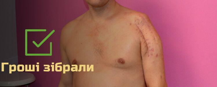 Святослав, 46 років. Лікування завершено, триває реабілітація