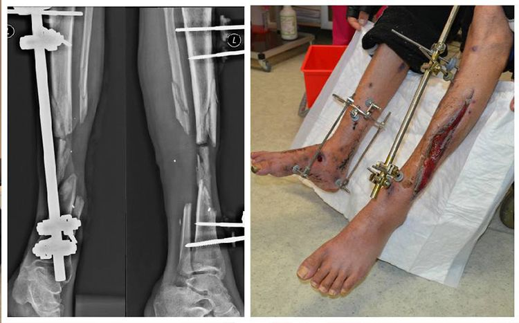 Improving complications: volunteer project tries to restore wounded fighter's legs | People's project