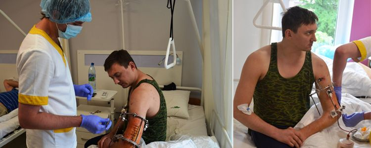 Primary operation on Evhen's arm is performed