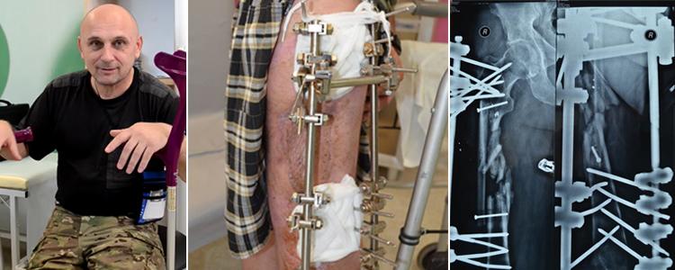 Oleh B, 47. Treatment completed, rehabilitation is in progress