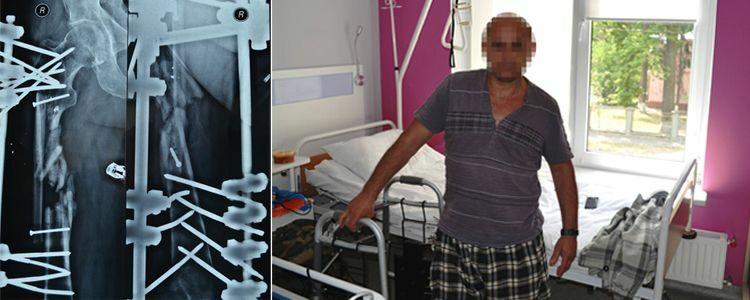 Wounded volunteer Oleh of Donbas Battalion begins treatment