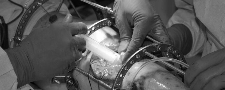 Vasil experiences formation of new bone