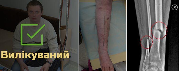 Юрій Я., 25 років. Вилікуваний