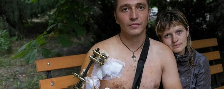 Preliminary results of Sergyi's treatment