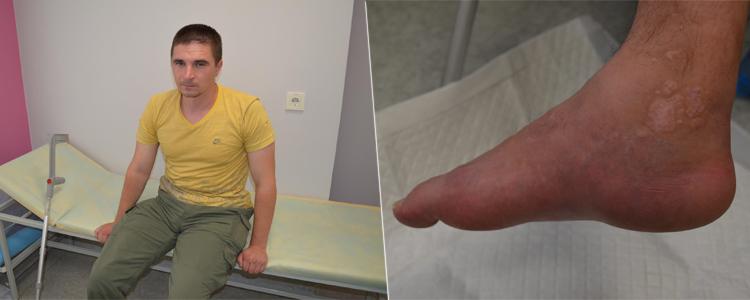 Oleksandr K, 32. Treatment is in progress
