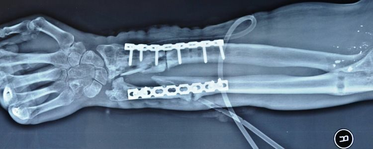 Відновлення Валерія після операції на передпліччі