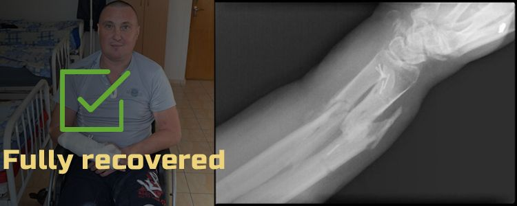 Serhiy D, 40. Treatment completed, rehabilitation is in progress