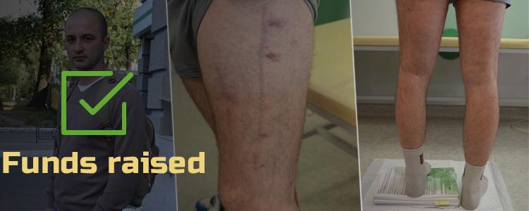 Dmytro, 25. Treatment is in progress