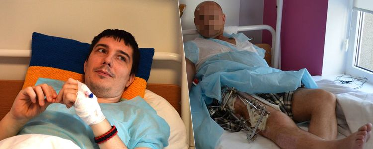 Oleksiy undergoes first operation and Oleh has apparatus removed