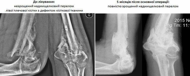 Doctors ascertain complete fusion of Evhen's humerus