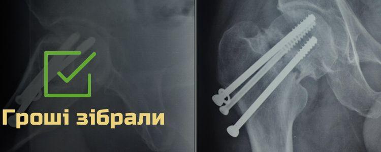 Володимир К., 44 роки. Триває відновлення та реабілітація