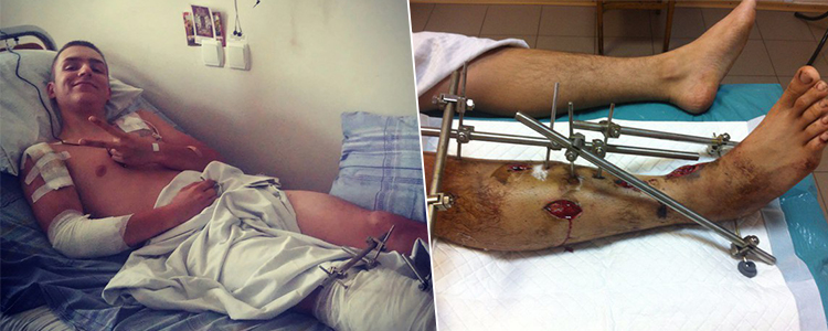 Ihor, 19. Treatment completed. Rehabilitation is in progress