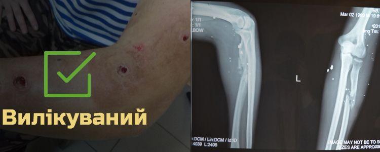 Богдан В., 25 років. Лікування успішно завершено