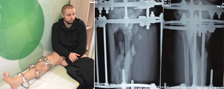 Oleksandr P, 28. Additional stage of treatment due to the trauma