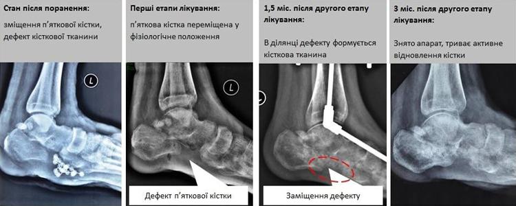 Олександру зробили операцію, яка дозволить вільно ступати на ногу