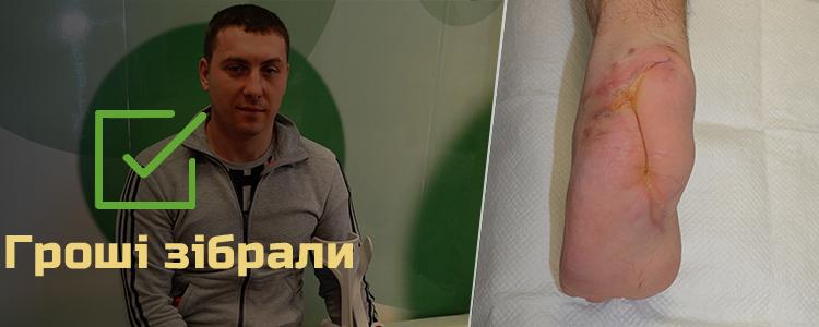 Володимир Ф., 36 років. Кістка відновлена, триває лікування сухожилля