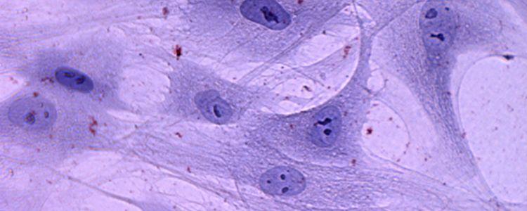 Клітинна терапія остеоартриту стовбуровими клітинами пуповинної крові