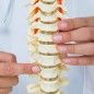 Scientists discover gene that triggers development of scoliosis