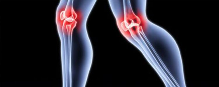 Flow of interstitial fluid can help identify the occurrence of osteoarthritis
