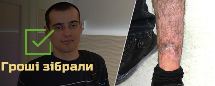 Богдан З., 22 роки. Лікування розпочато