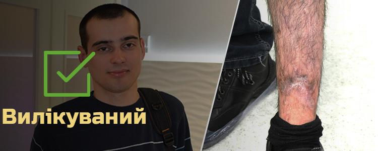 Богдан З., 22 роки. Лікування успішно завершене