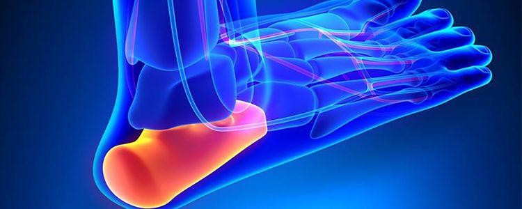 Корейські лікарі імплантували 3D-надруковану п'яткову кістку