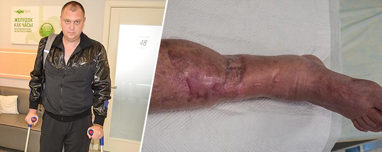 Oleksandr G, 39. Treatment is in progress