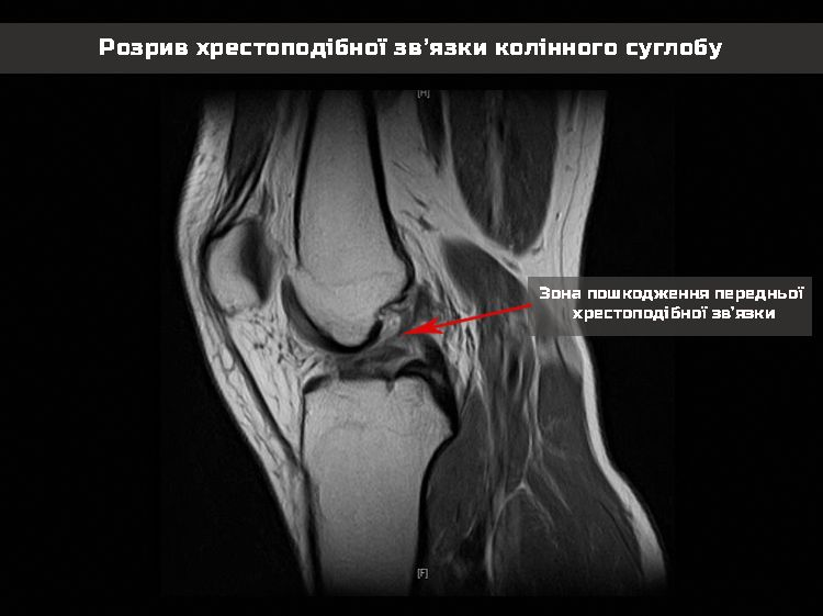Torn ligament