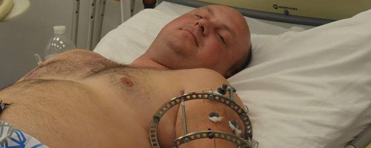 Плече пораненого бійця відновлюють біотехнологіями
