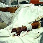 Технології, апробовані під час лікування поранених на фронті, починають працювати для цивільних