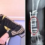 У бійця, пораненого при обороні Савур-Могили, з'явився шанс врятувати руку