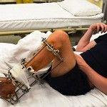 Проект Біотех-реабілітація поранених «поставив на ноги» пораненого танкіста