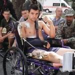 Прорив у медицині: лікарі з України відновили кістки бійця АТО