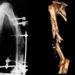 Ноги замість візка: українські лікарі-біотехнологи врятували Юрія від інвалідності