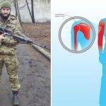Потребує термінового лікування поранений у Пісках доброволець батальйону ОУН