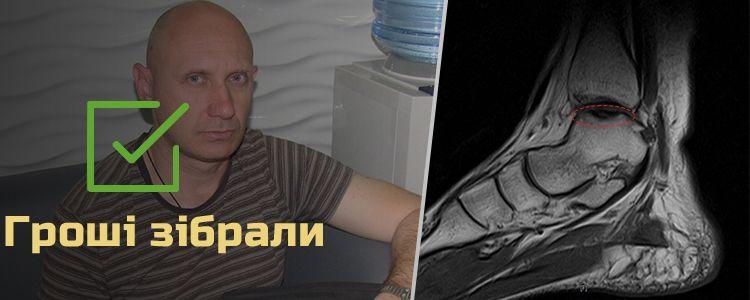 Олександр С., 43 роки. Гроші зібрали