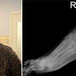 Через 2 роки після операції нога бійця АТО повністю відновилася