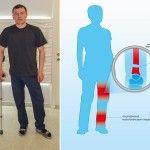 Загрожує довічна інвалідність: боєць АТО потребує термінової допомоги