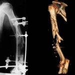 Українські лікарі за допомогою біотехнологій виростили руку бійцю АТО