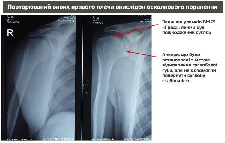 X-Ray Oleg Dav