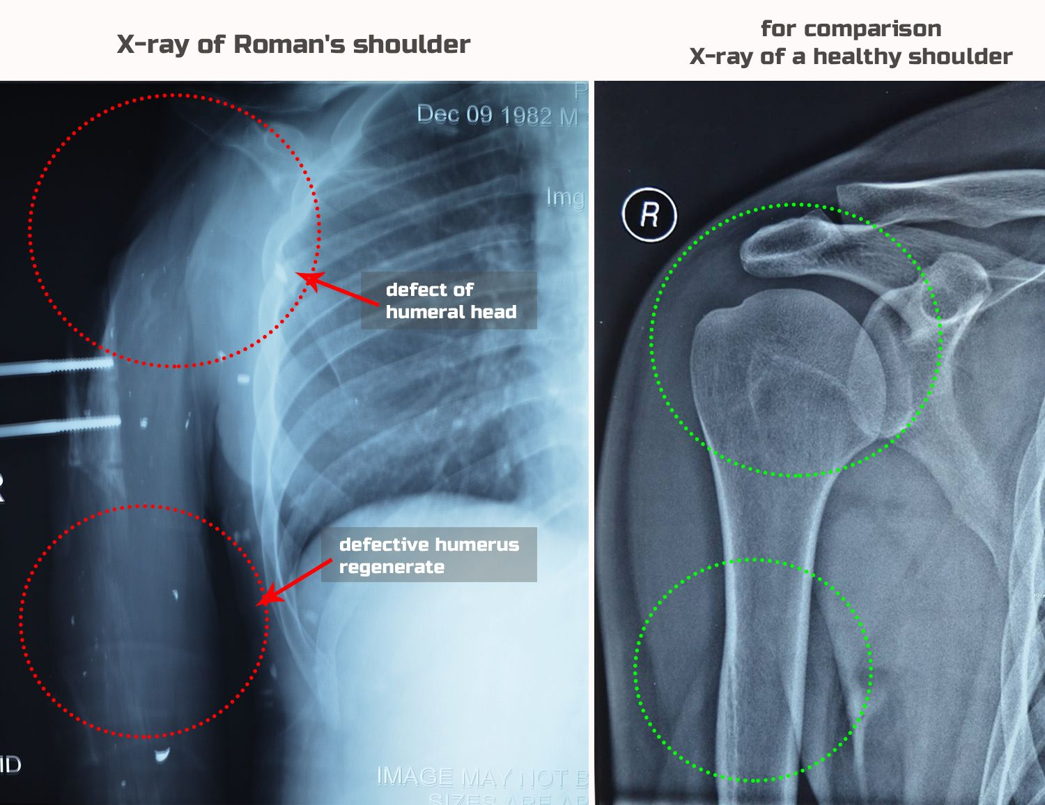x-ray-comparison-engl
