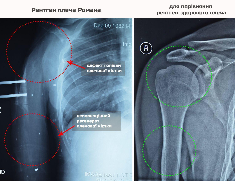 X-ray comparison