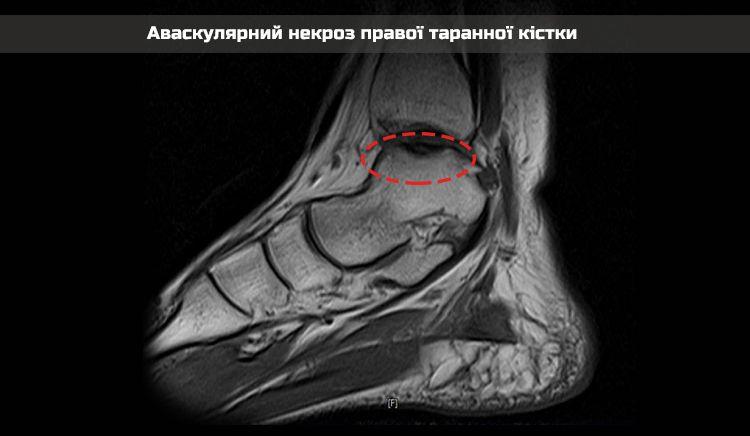 X-ray-nekrosis-2