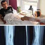 Волонтери оплатили лікування ще двох бійців «Біотеху»