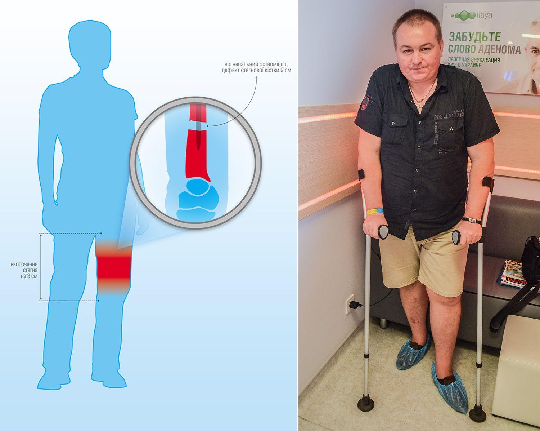 sergiy-kys-blog-injury-scheme