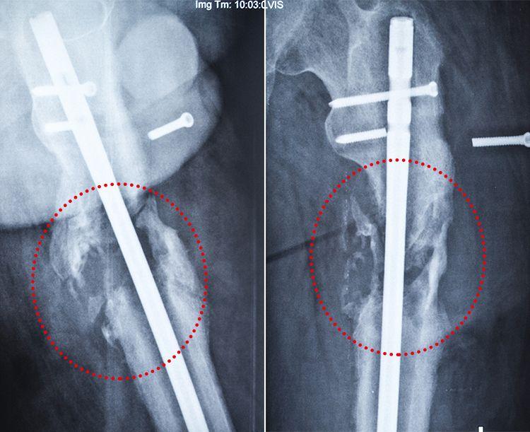 sergiy-kys-blog-x-ray