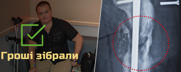 Сергій К., 40 років. Лікування триває