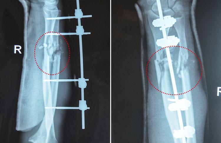 x-ray-forearm