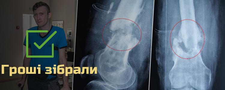 Віталій А., 26 років. Лікування триває
