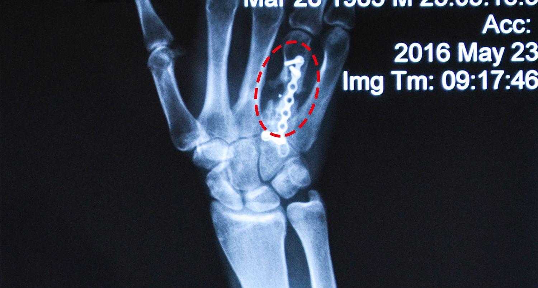 hand-x-ray-sergiy-mih
